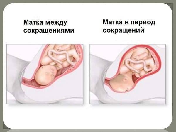 Узи (цервикометрия) шейки матки при беременности