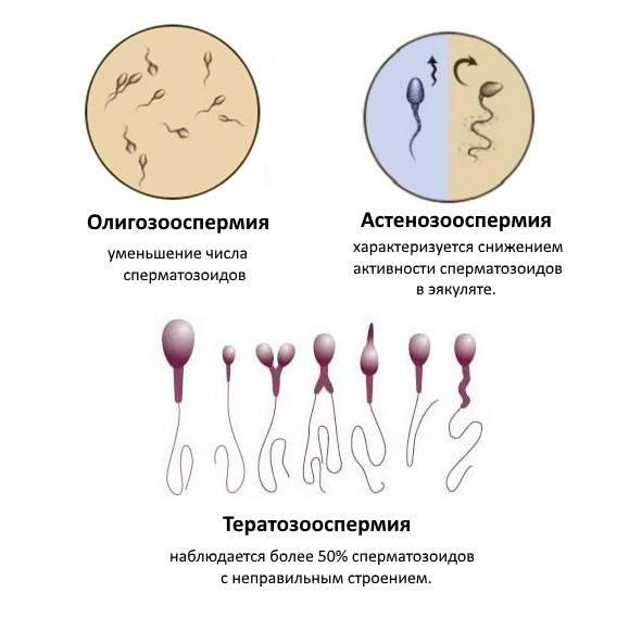 Что такое тератозооспермия и как она влияет на зачатие?