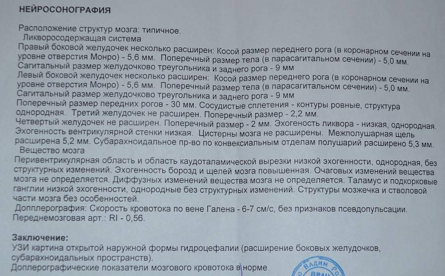 Нейросонография: описание и особенности проведения процедуры в новосибирске