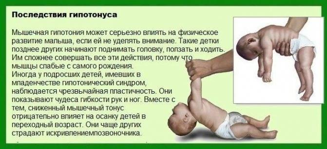 Тонус мышц ребенка и его нарушения   | материнство - беременность, роды, питание, воспитание