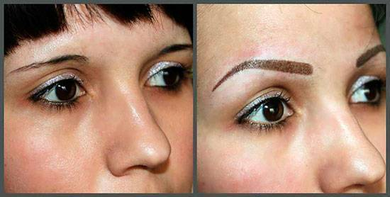 Перманентный макияж и онкология: помочь можно!    pro.bhub.com.ua