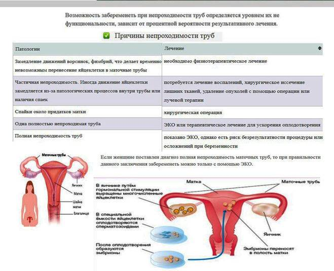 Бесплодие: причины и лечение – напоправку – напоправку