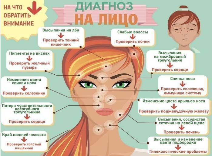 Психосоматика: акне на лице — описание, причины и решение проблемы