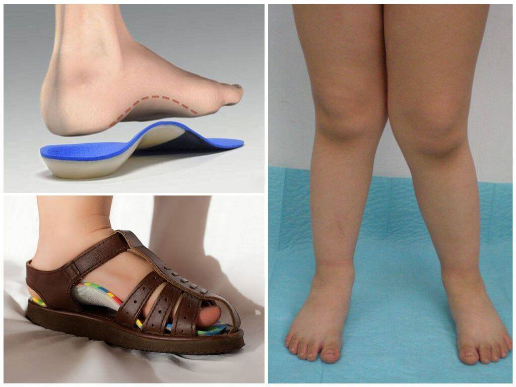 Косточка на ноге (вальгусная деформация): лечение халюс вальгус - напоправку – напоправку