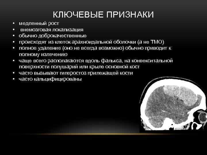 Опухоли мозга у детей: как не пропустить и что делать | медицинский дом odrex