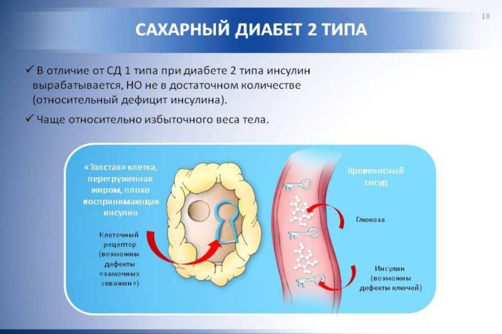 Лечение импотенции при сахарном диабете