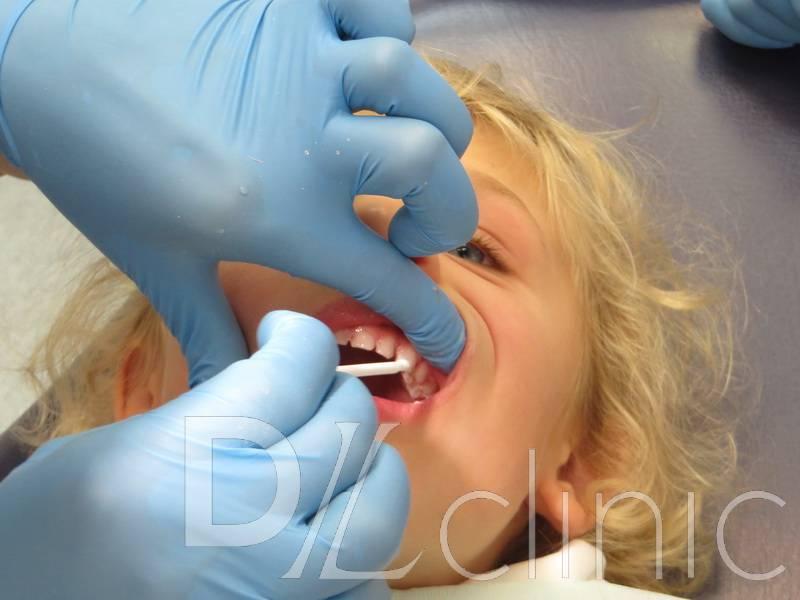 Глубокое фторирование зубов у детей
