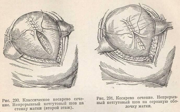 Плановое кесарево сечение и экстренное кесарево сечение