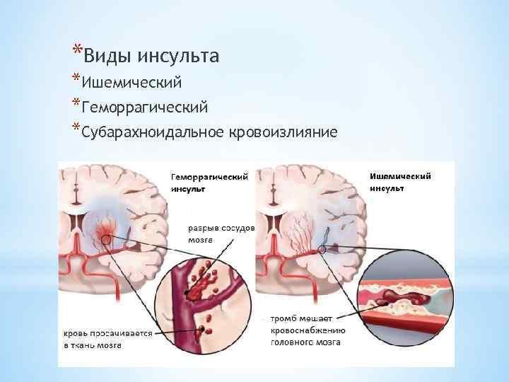 Психологические причины ишемии сердца