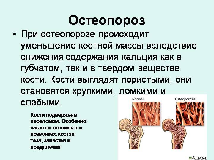 Остеопороз. болезнь возраста, болезнь костей.