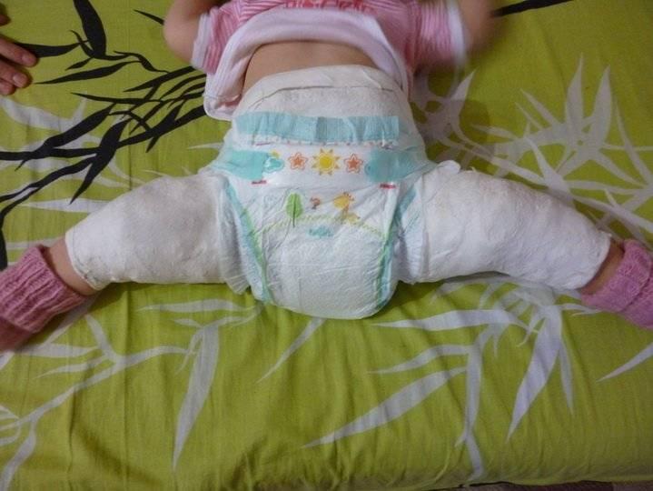 Узи врожденная дисплазия тазобедренных суставов (лекция на диагностере) - диагностер