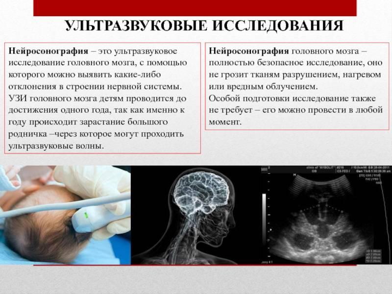Уздг сосудов головы детям: показания к исследованию, расшифровка результатов допплерографии