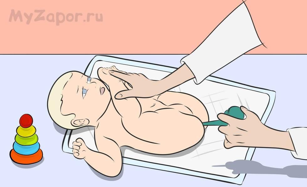 Как часто можно делать клизму младенцу