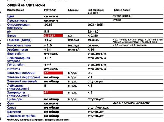 Моча у грудничка: анализ и норма, повышенные лейкоциты