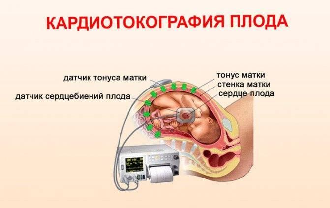 Пол ребенка по сердцебиению – какова точность определения