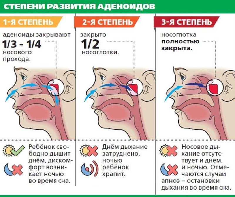 Лечение астмы народными средствами в домашних условиях - medical insider