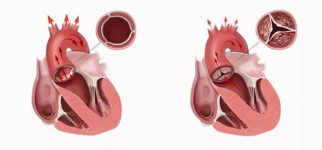 Эндоваскулярное закрытие дефекта межпредсердной перегородки