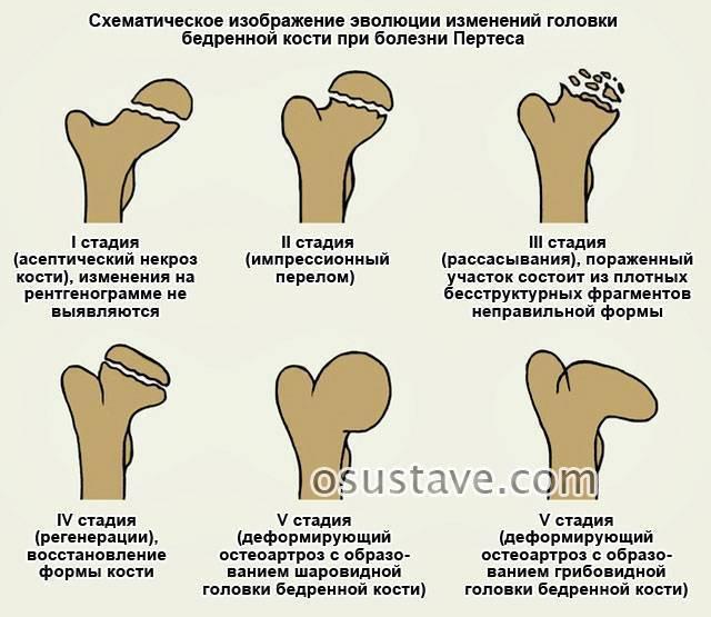 Дисплазия тазобедренных суставов: диагностика и лечение - причины, диагностика и лечение