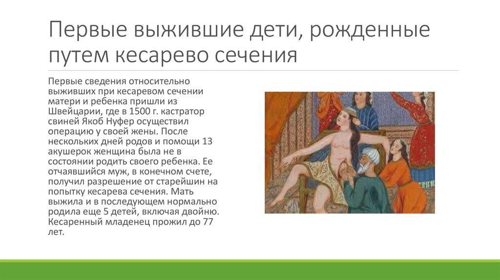 Кесарево сечение. почему кесарево сечение называется кесаревым - лечение