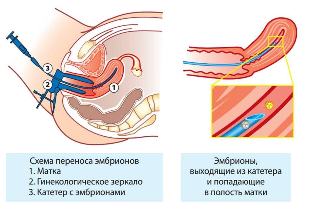 Жизнь после переноса эмбрионов   что рекомендуют врачи