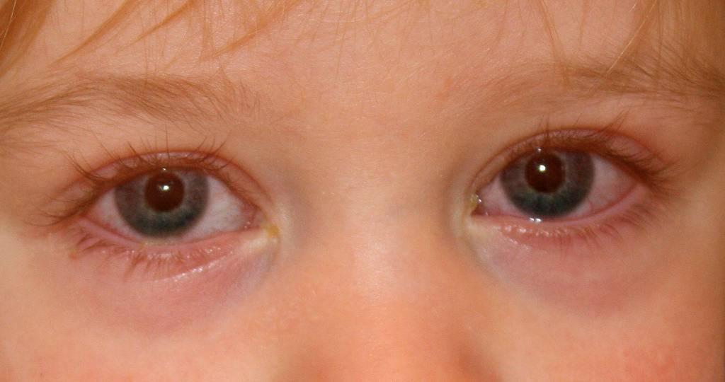 Аллергический конъюнктивит у детей - симптомы болезни, профилактика и лечение аллергического конъюнктивита у детей, причины заболевания и его диагностика на eurolab