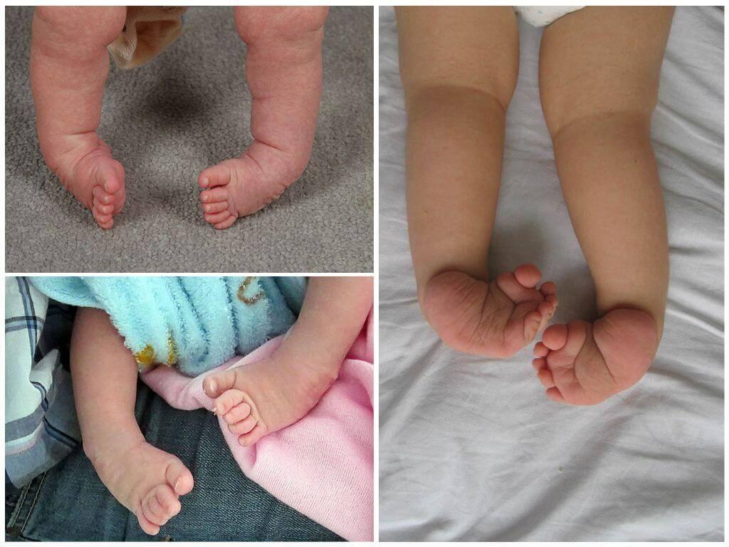 Когда можно ставить грудничка на ноги ~ детская городская поликлиника №1 г. магнитогорска