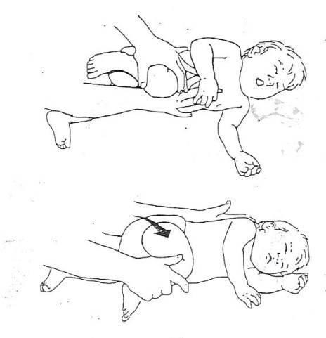 Массаж при кривошее у ребенка