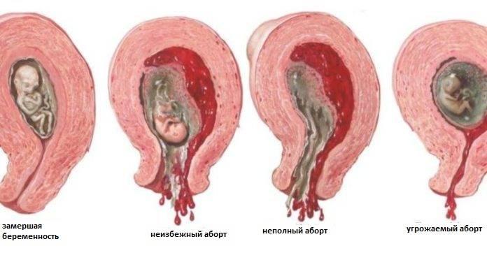 Замершая беременность на ранних сроках