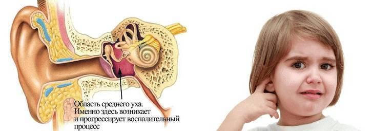Заложенность носа без насморка