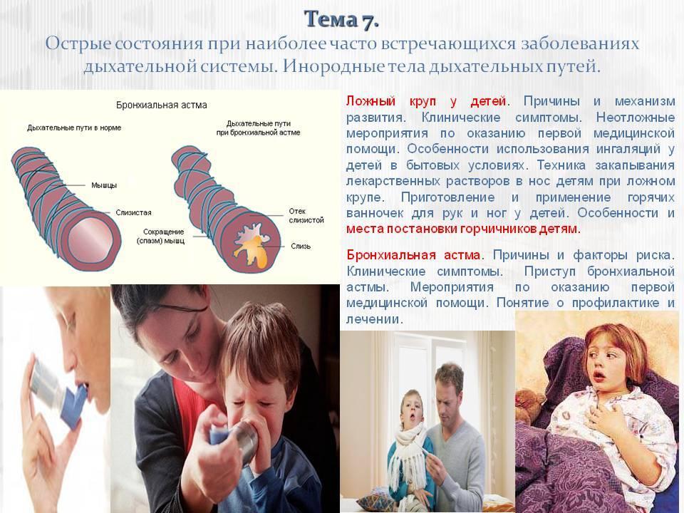 Ложный круп у ребенка: симптомы, лечение и профилактика