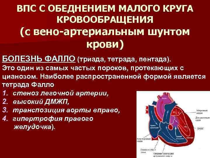 Патологии сердца плода, которые можно определить на скрининговом узи