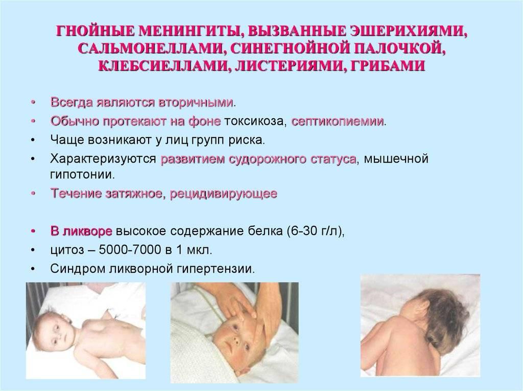Менингит у детей: причины, лечение и профилактика
