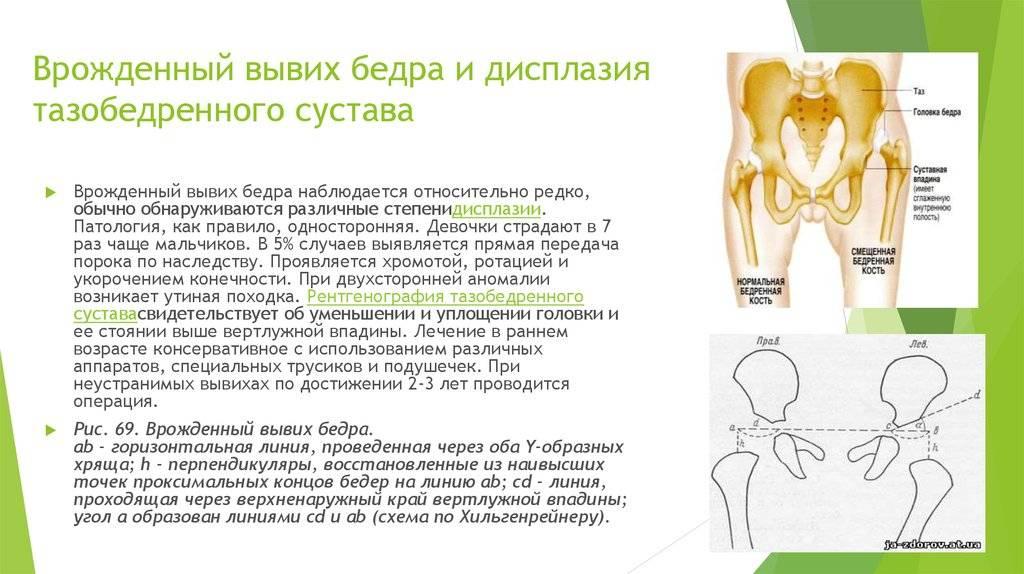 Дисплазия тазобедренных суставов у грудничков — добрый доктор