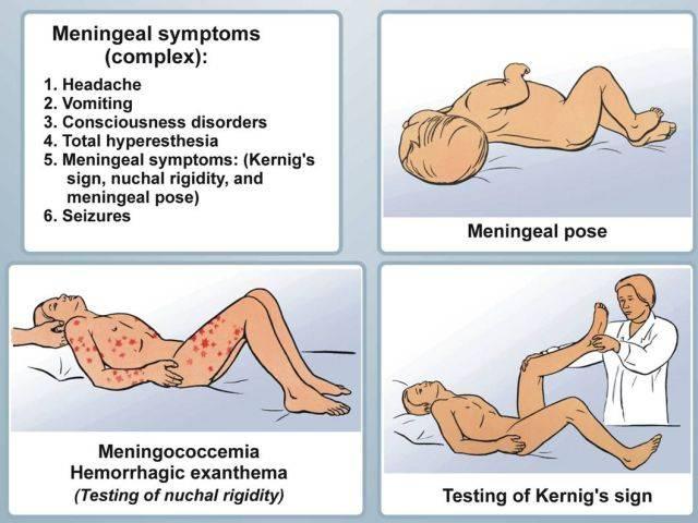 Причины белого налета на языке у ребенка   грудничка, и его лечение