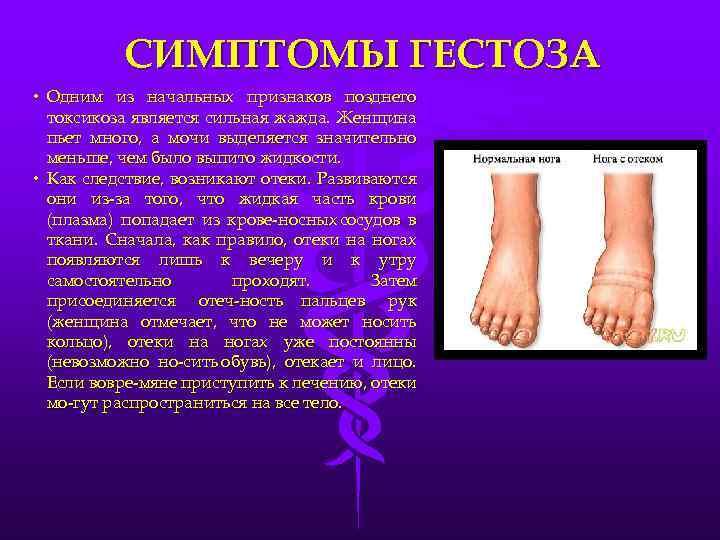 Гестоз — симптомы, лечение, профилактика | «восьмая клиника»