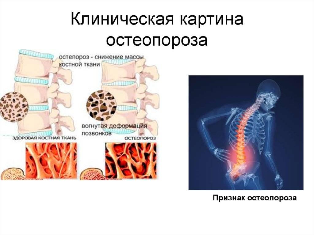 Остеопороз: причины, лечение, прогноз — онлайн-диагностика