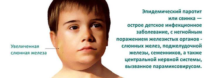 Эпидемический паротит у детей - симптомы болезни, профилактика и лечение эпидемического паротита у детей, причины заболевания и его диагностика на eurolab