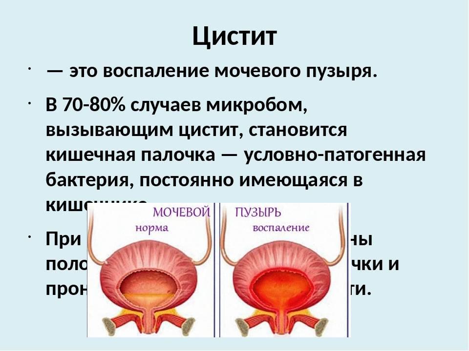 Лямблиоз