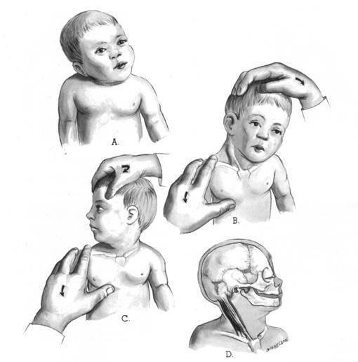 Массаж при кривошее: специальный массаж для растянутых и укороченных мышц шеи