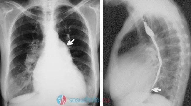 Рентген грудной клетки - зачем и как он проводится. где сделать рентген грудной клетки.