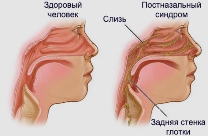 Лобный синусит (фронтит)