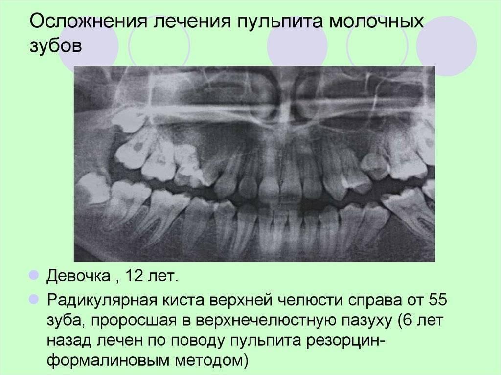 Лечение зубов под седацией (во сне) у детей в москве