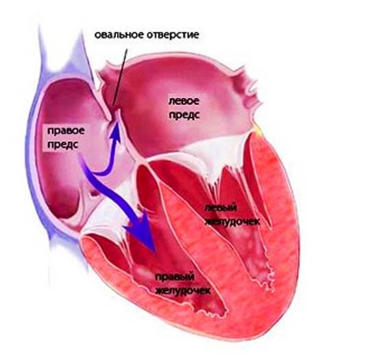 Коарктация аорты - лечение эндоваскулярными методами в отделении института амосова.