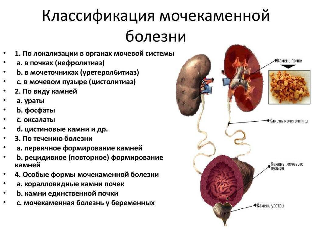Инфекции мочевыводящих путей: симптомы, причины, факторы риска и диагностика