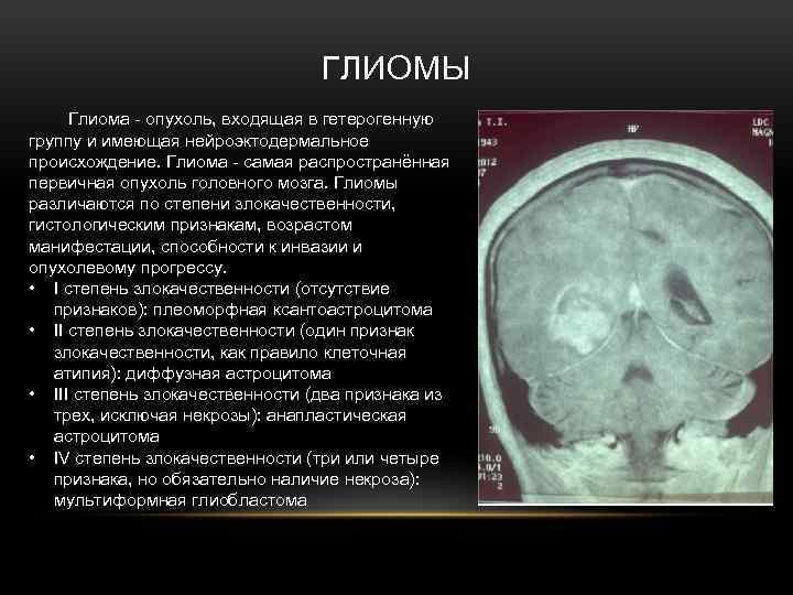 Первые признаки рака: диагноз на ранней стадии