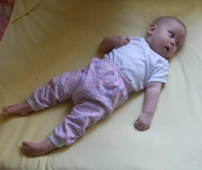 Конъюнктивит у новорожденных детей: причины, симптомы и лечение