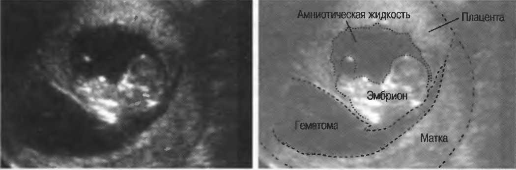 Диагностика и лечение гематомы в матке при беременности