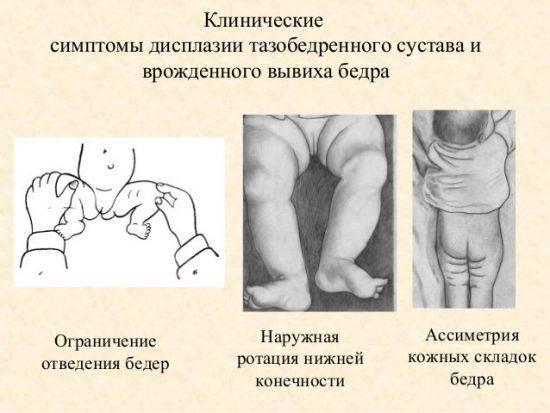 Дисплазия у ребенка: главное вовремя начать лечение