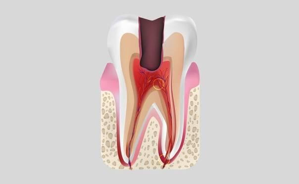 Лечение периодонтита у детей - лечение периодонтита молочных зубов. народные методы лечения