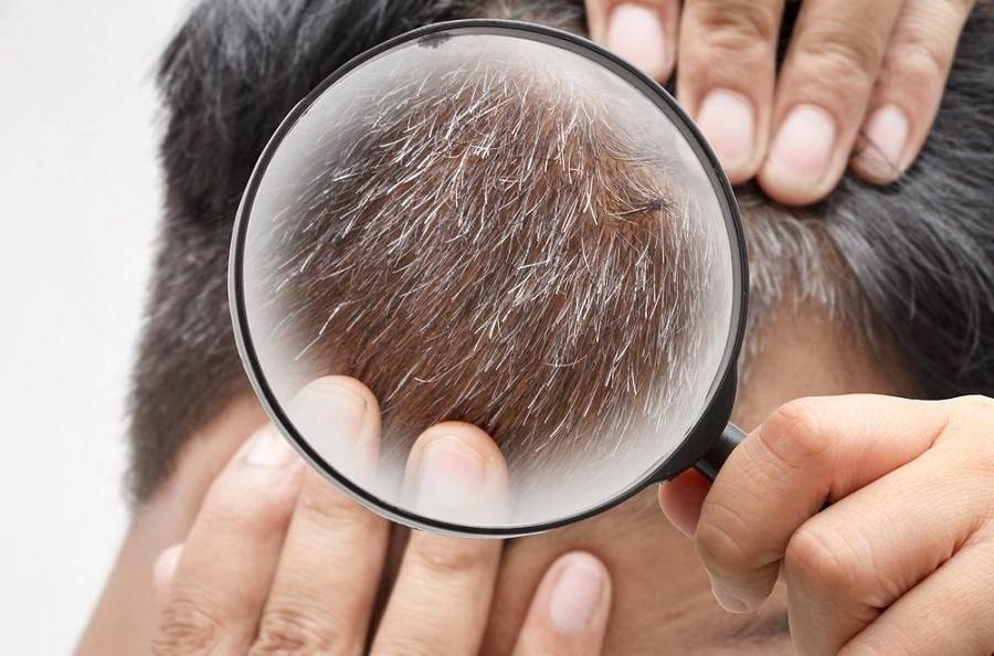 При каких заболеваниях происходит выпадение волос?